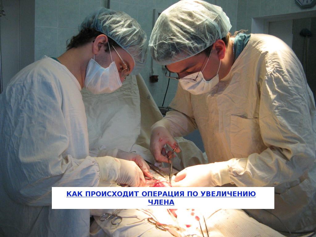 Операция по увеличению полового члена в уфе