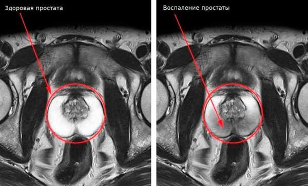 tomografiya-prostaty