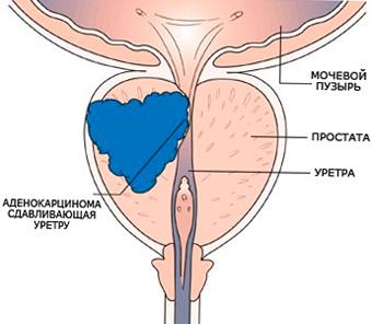 аденомакарцинома
