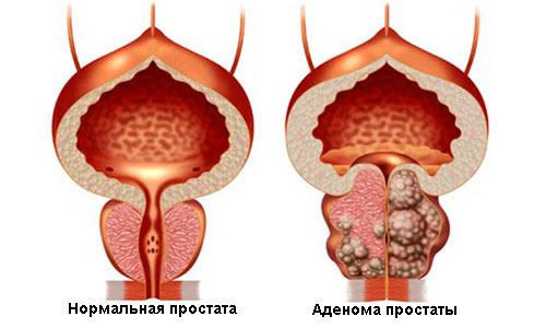 Как вылечить аденому простаты без операции