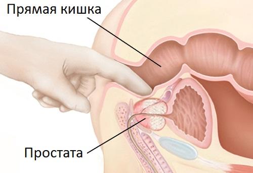 массаж простаты пальцем