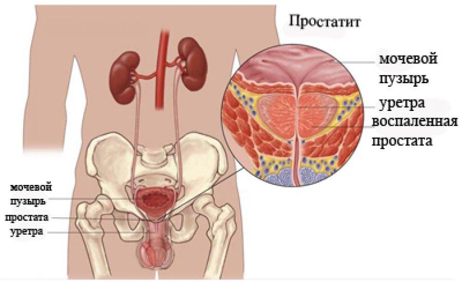 Какие существуют виды простатита у мужчин их причины симптомы и лучшие методы лечения