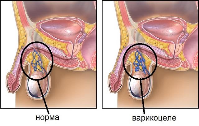варикоцеле у мужчин как лечить без операции