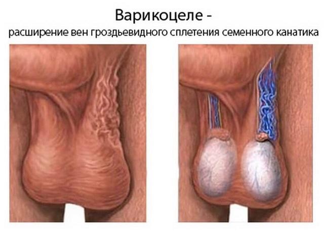 вены на яичках