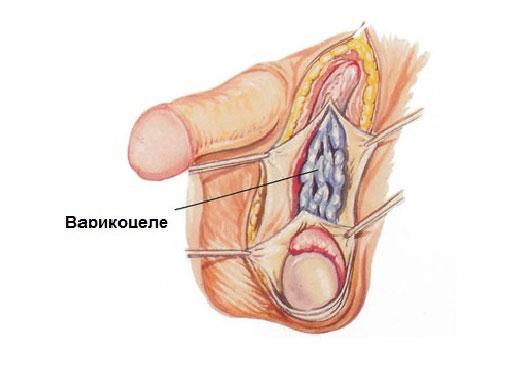 варикоцеле лапароскопическая операция