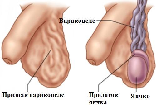Как лечить варикоцеле в домашних условиях
