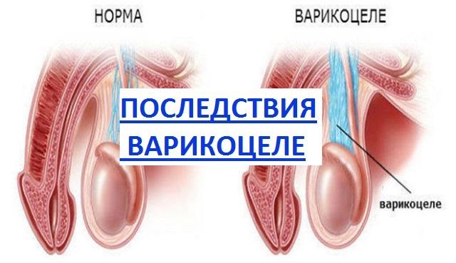 последствия от варикоцеле