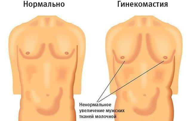 Гинекомастия у мужчин что это