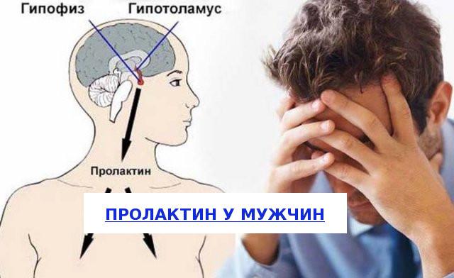 Пролактинемия у мужчин