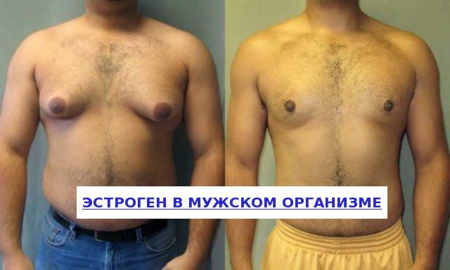 Эстроген в мужском организме