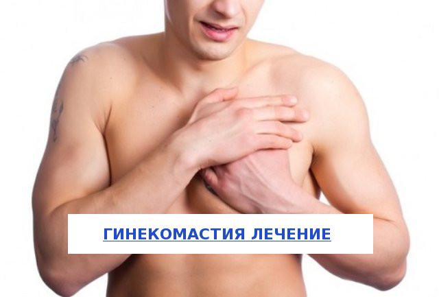 Лечение гинекомастии у мужчин