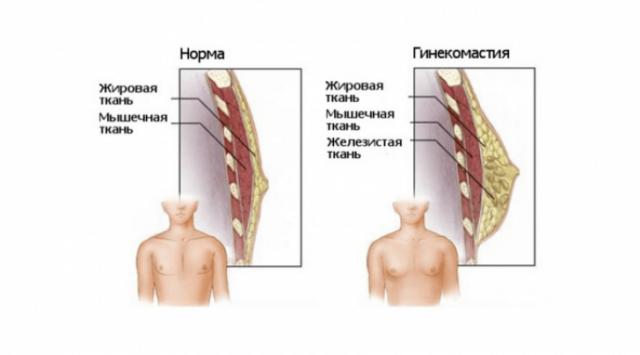 гинекомастия как лечить