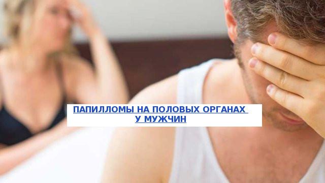 Папилломы на интимных местах у мужчин: причины и лечение