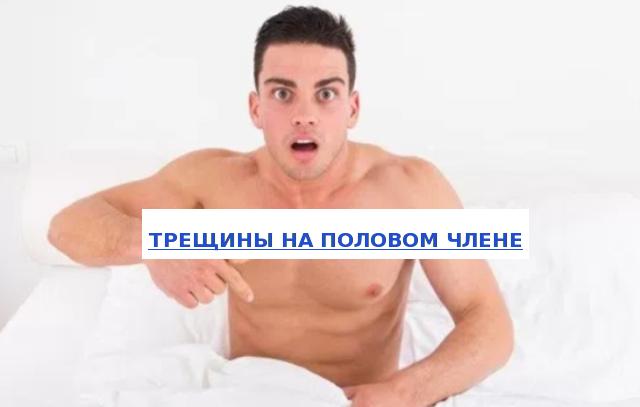 Трещины на половом члене лечение