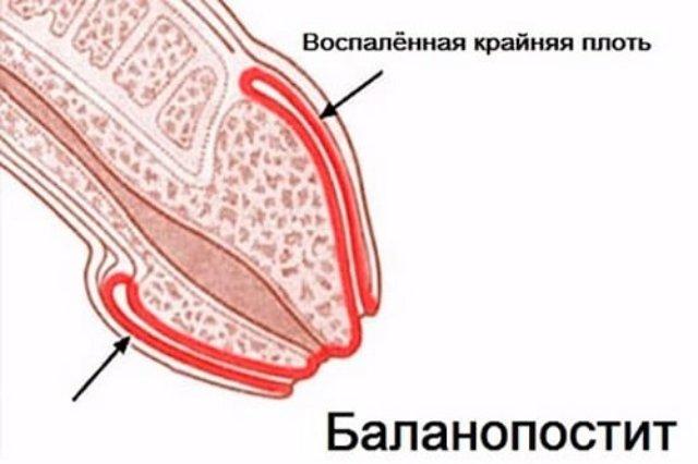 Воспаление головки и крайней плоти