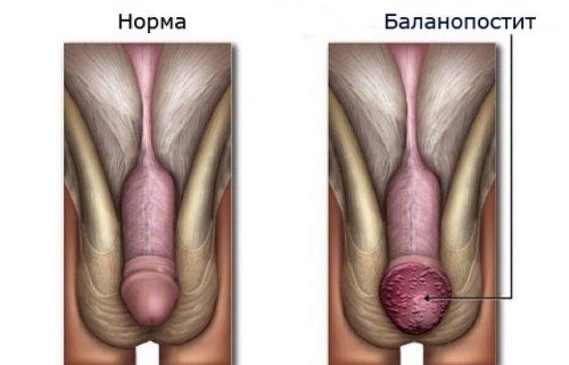 хронический баланопостит у мужчин