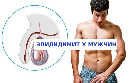 Орхоэпидидимит — симптомы, диагностика и лечение