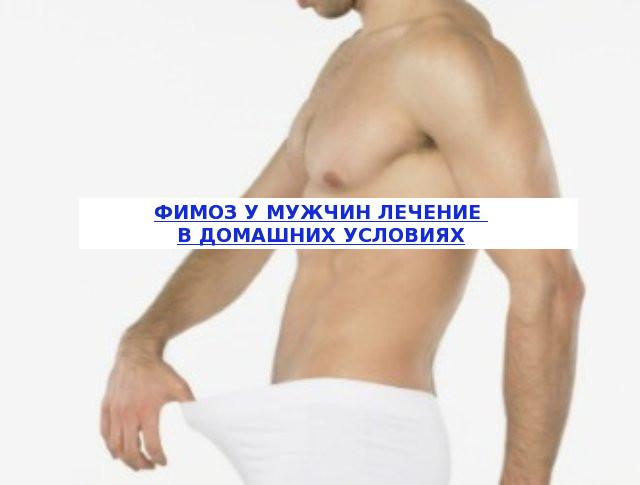 Фимоз у мужчин лечение в домашних условиях