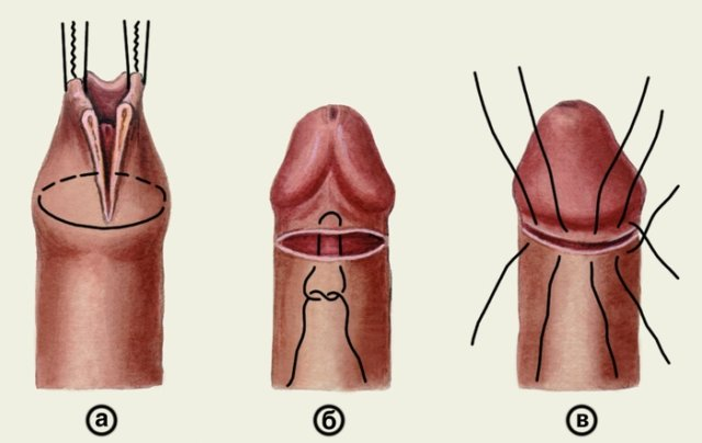 операция фимоз