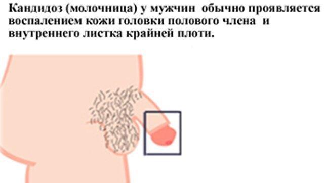 Баланит кандидозный лечение