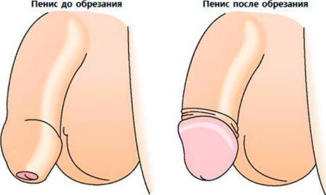 лечение рубцового фимоза