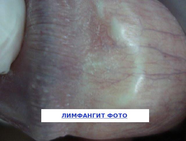 лимфангит полового члена фото