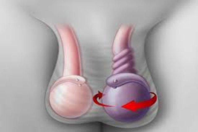 опухло яичко у мужчины причины лечение