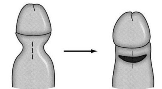 гиперторофический фимоз