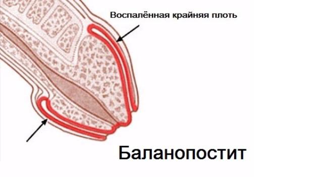 воспаление головки полового члена
