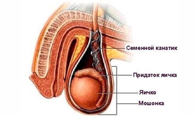 Воспаление семенного канатика (фуникулит)