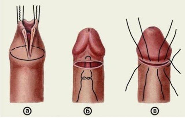 реабилитация после обрезания