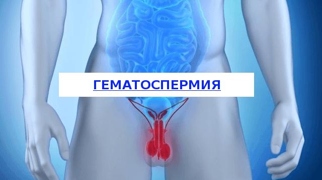 гематоспермия