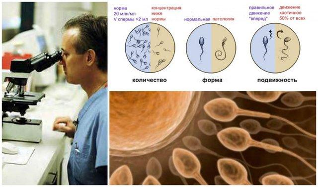 что такое некрозооспермия