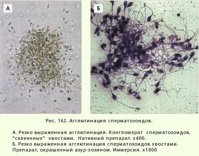 в спермограмме агглютинация