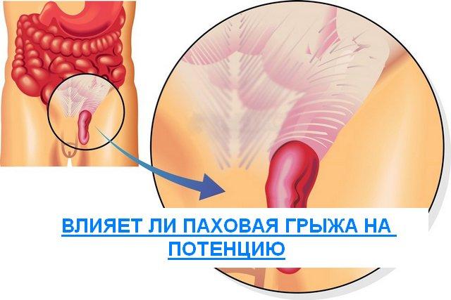 Влияет ли паховая грыжа на потенцию у мужчин