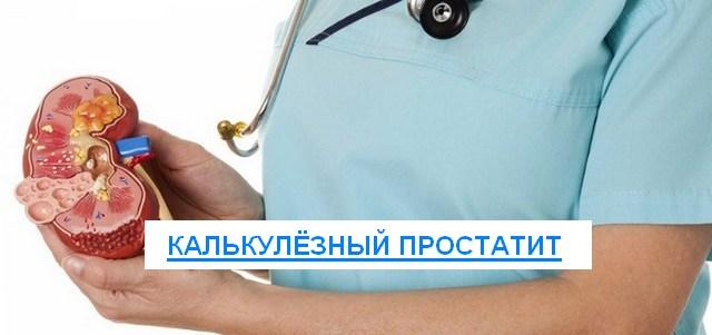 калькулезной простатита