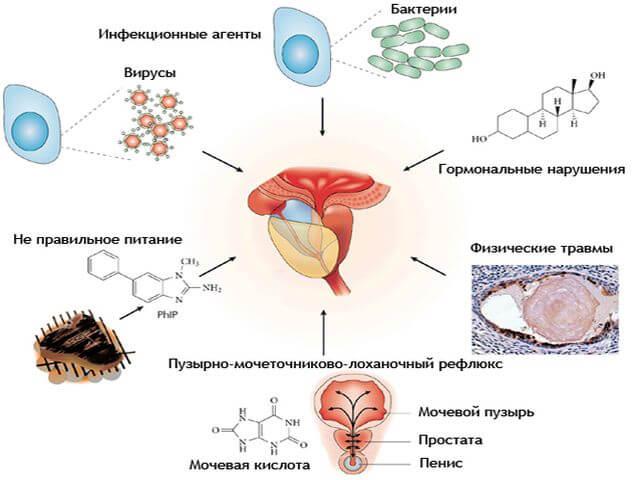 хронический бактериальный простатит