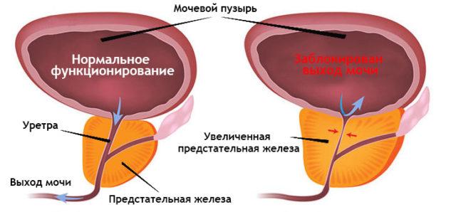 где делают эмболизацию аденомы простаты
