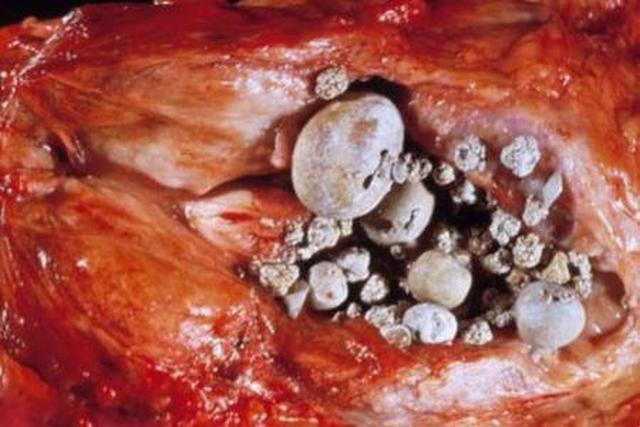 кальцинаты предстательной железы что это такое