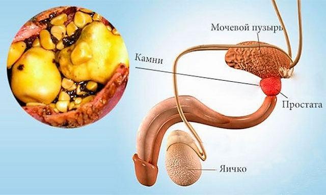 кальцинаты в предстательной железе лечение