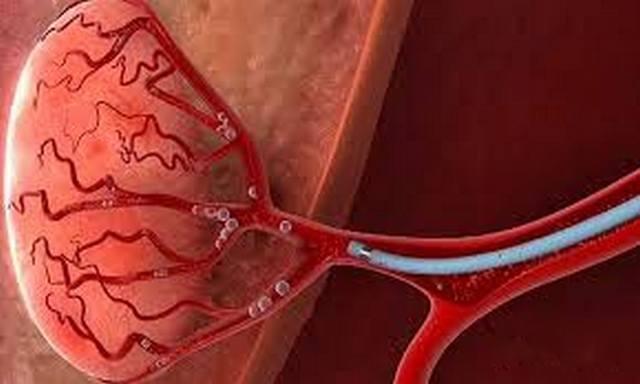 эмболизация предстательной железы