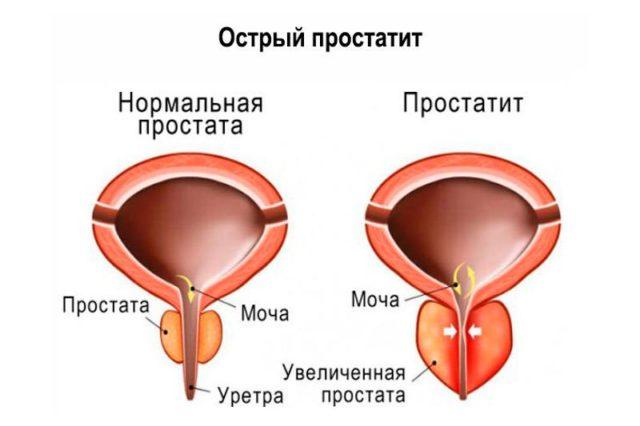 острый простатит у мужчин симптомы лечение