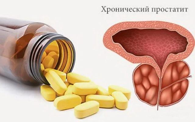 хронический простатит симптомы