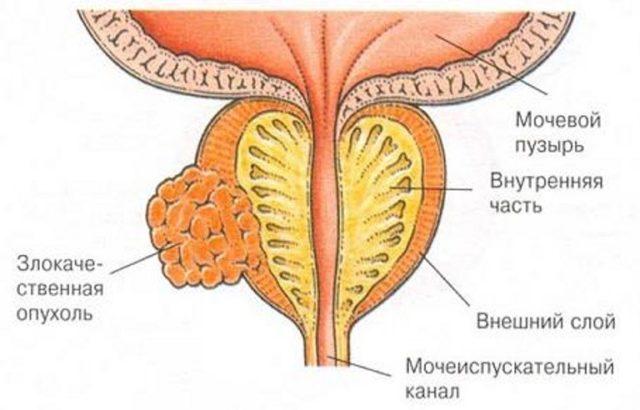 ацинарная аденокарцинома предстательной железы 7 баллов по глисону