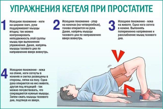 упражнения при простатите и аденомы простаты