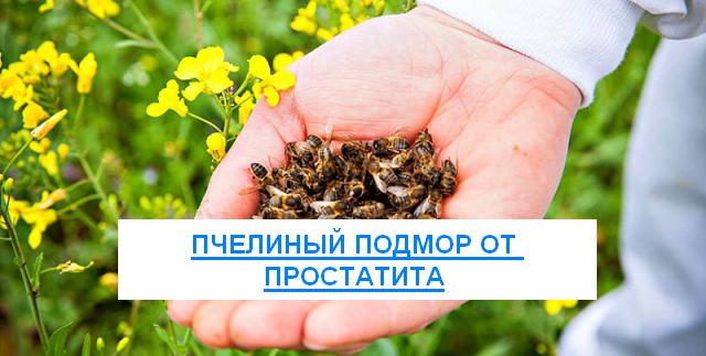 Подмор пчел для лечения простатита методы излечения простатита