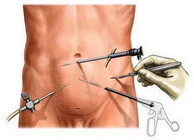 аденомэктомия ход операции