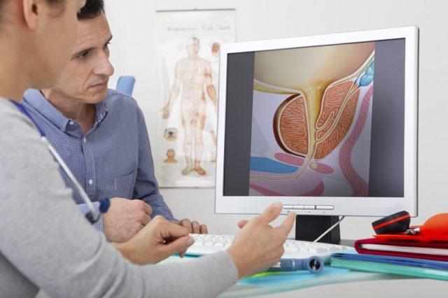4 упражнения от простатита доктор евдокименко