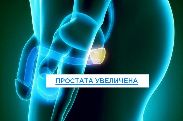 простата увеличена