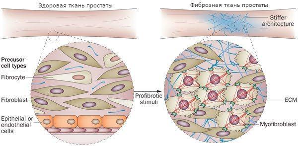 фиброзная и здоровая ткани предстательной железы